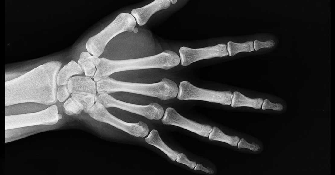 Chcesz jak najszybciej wrócić do zdrowia po urazie palca? Załóż ortezę i pozwól organizmowi na samodzielną regenerację!